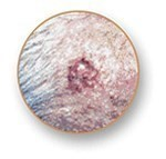 Basal Cell Carcinoma BCC